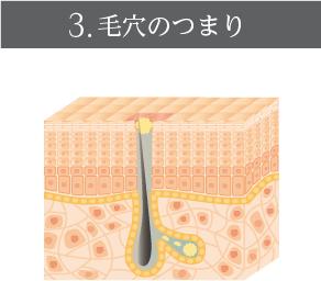 3.毛穴のつまり